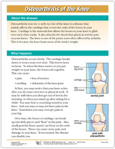 Osteoarthritis of the Knee Tearpad (50 sheets per pad)