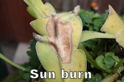 sunburn250.jpg