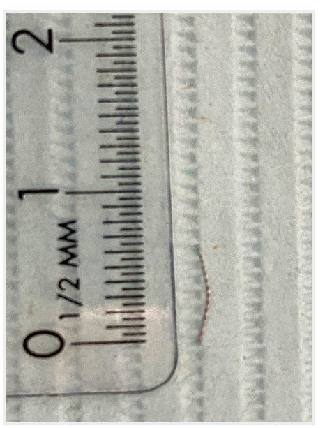 The nearly 7mm logng piece of the #15 file that was removed from the tooth.
